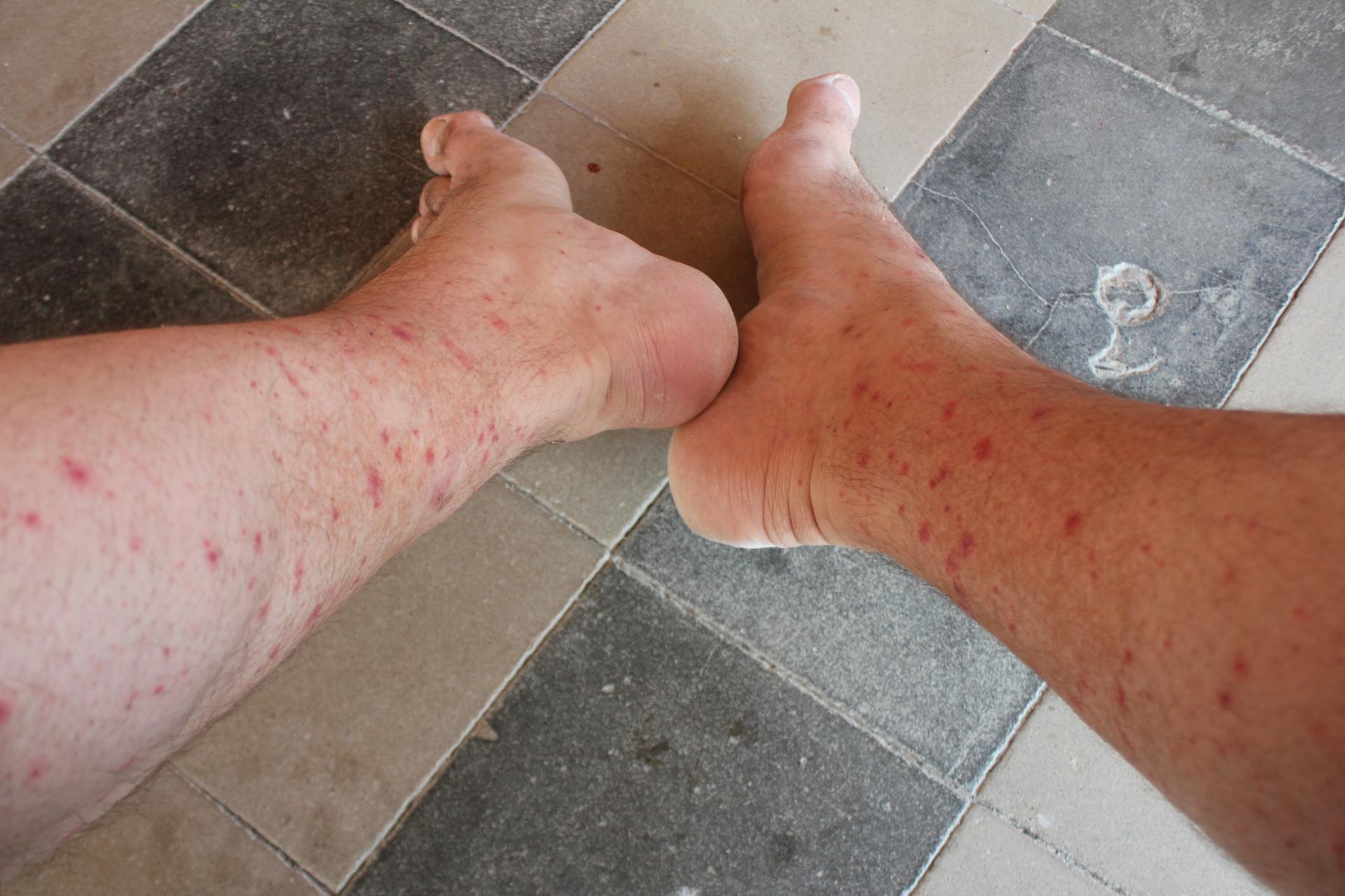 muggen_voer